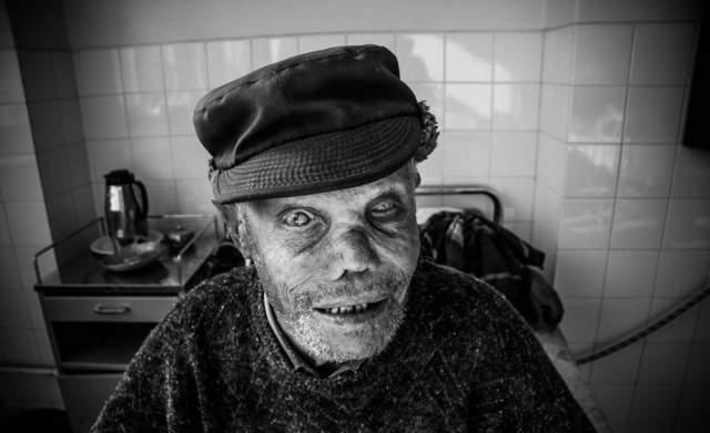 Khawab Mein Jazam Ki Bemari Hona / Leprosy In The Dream