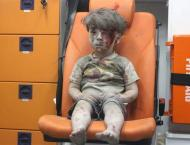 A picture of four years old Syrian wounded boy wounds hearts of p ..