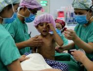 79 Afghan children with congenital heart disease to get free surg ..