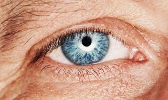 Floppy eyelids can be sign of sleep apnea