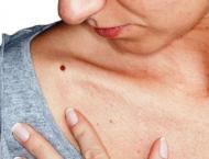 Aussie scientists develop new blood test for major skin cancer