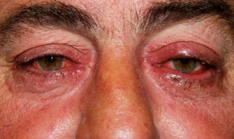 Eyes can provide early sign of Parkinson's disease