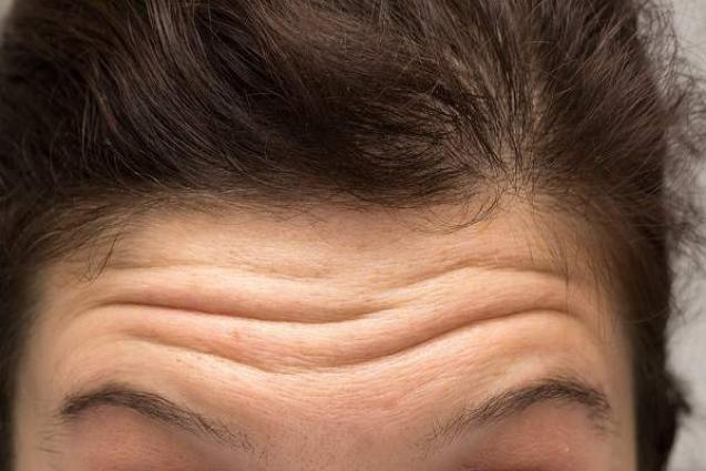 Could forehead wrinkles indicate a higher risk of cardiovascular disease?