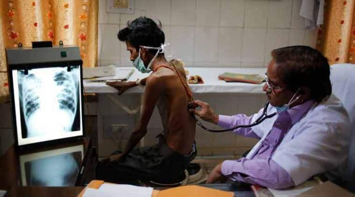 Over half million new TB cases emerge in Pakistan every year:  Health experts