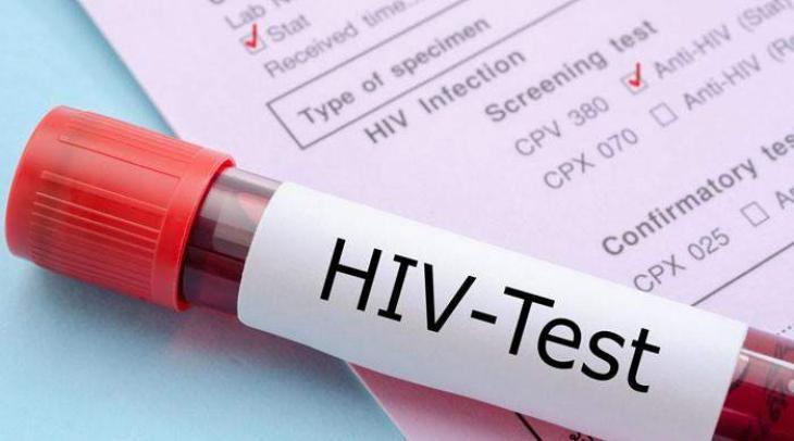 Sindh Government notifies commission for HIV/AIDS control