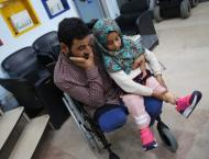 Syria teen gets prosthetic limb in Turkey
