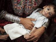Pakistan needs adequate preventive measures to deal with malnutri ..