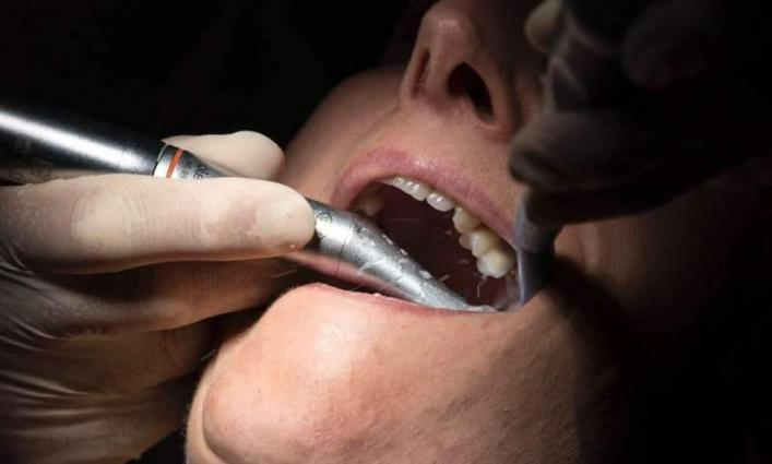 Virus lockdown forces Brits to become own dentists