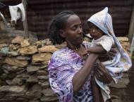 South African NGO Worried Over Children's Progressing Malnutritio ..