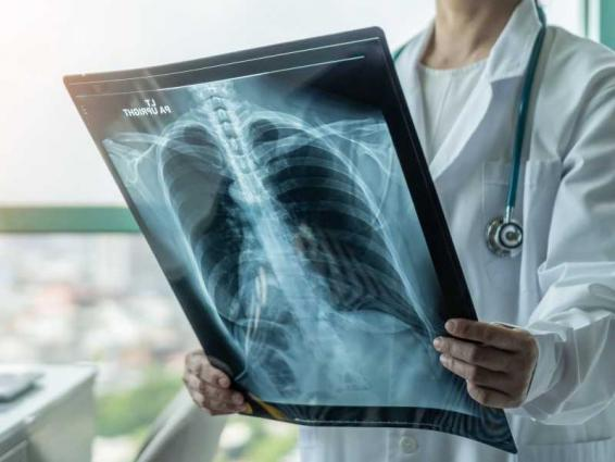 SEHA's International Radiology Conference explores latest innovations, technological advancements