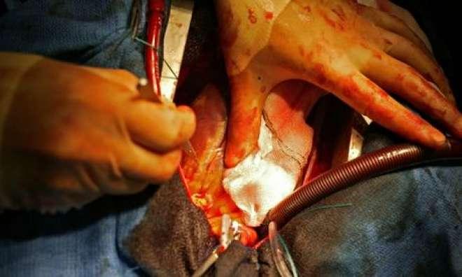 بھارتی شخص کے دل میں دو ماہ سے پھنسی گولی نکال لی گئی،
