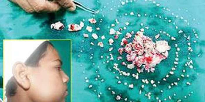 ممبئی ، ڈاکٹروں نے دسویں جماعت کے طالب علم کے منہ سے 232 دانت نکال لئے
