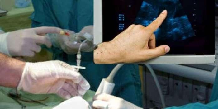 مریضہ 'مردہ' لیکن حاملہ: زندگی اور موت کا مقدمہ آئرش عدالت میں