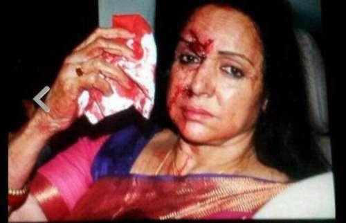 راجستھان میں ٹریفک حادثہ' ہیما ..