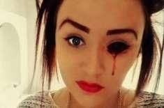 پراسرار لڑکی کی آنکھوں  اور کانوں سے دن میں پانچ بار خون بہتا ہے