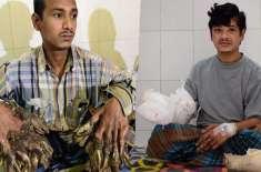 بنگلادیشی ٹری  مین  کا ہاتھ 16 آپریشن کے بعد ٹھیک ہونے کی امید