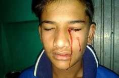 بھارتی نوجوان لڑکا حقیقت میں خون کے آنسو روتا ہے۔ دن میں دس بار کانوں، ..