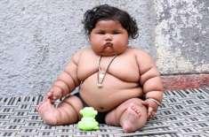 8 ماہ کی بچی کے  17کلوگرام  وزن نے ڈاکٹروں کو حیران کر دیا