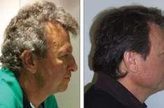 کینسر کی ایک نئی دوا کے ذیلی اثرات سے مریضوں کے سر کے بال بھورے ہو جاتے ..
