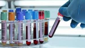 پیشاب کی جگہ قہوہ ٹیسٹ ،لیباٹری میں خطرناک بیماری تلاش کر لی گئی