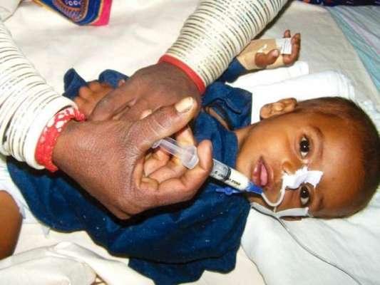 تھر میں غذائی قلت کے باعث مزید 2 بچے دم توڑ گئے