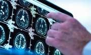 موٹے لوگوں کا دماغ چھوٹا ہوتا ہے۔ نئی تحقیق