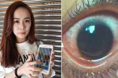 موبائل اسکرین کی تیز روشنی نے تائیوانی خاتون کی آنکھ کے پردے میں 500 ..