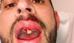 پی ایس ایل4کوالیفائر، کوئٹہ گلیڈی ایٹرز کے فواد احمد گیند لگنے سے زخمی ..