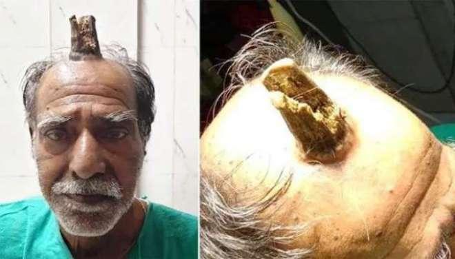 بھارتی شخص کے سر پر سینگ نکل آیا