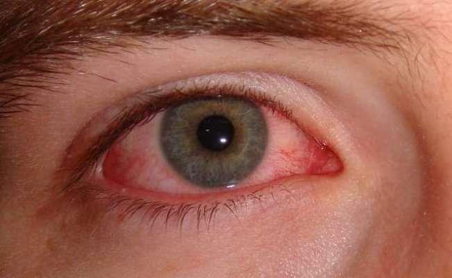 آنکھوں کا سرخ ہونا بھی کرونا وائرس کی علامت ہے