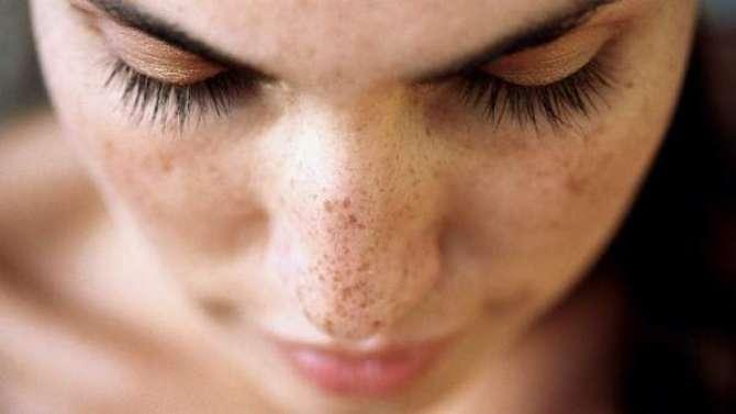 Health - Avoid From Dark Spot - Article No. 1140