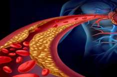 Qudrati Tariqa Apnaayeen - Cholesterol Kaam KareeN