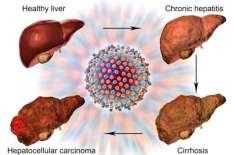 Hepatitis - Liver Ka Aarzah