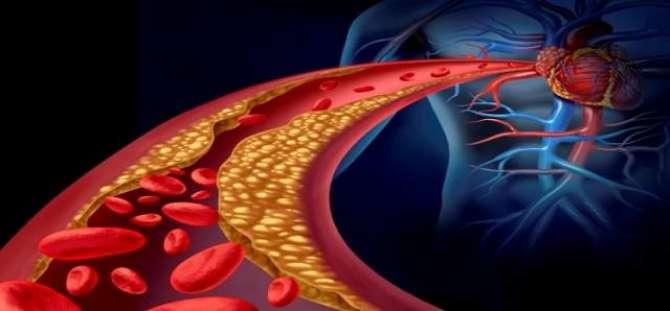 Qudrati Tariqa Apnaayeen - Cholesterol Kaam KareeN - Article No. 2090