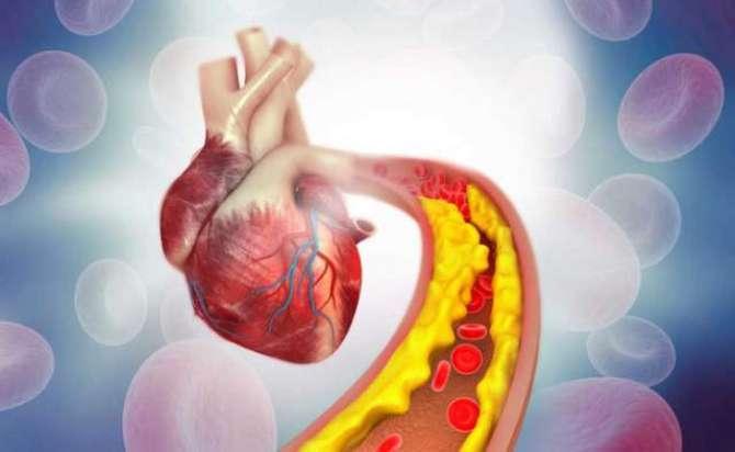 Cholesterol Dushman Sehat - Article No. 2183