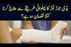 'Jirah' Desi Treatment For Fractured Bones In Pakistan