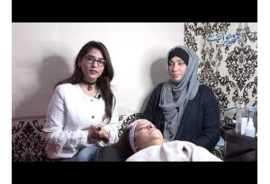 How To Get Rid Of Acne Scars And Freckles, Regeneration Therapy Brings The Solution, Tips In Urdu