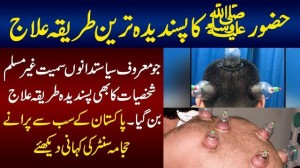 This Man Is Doing Hijama From Last 31 Years - Hijama Cupping Therapy | Hijama Benefits
