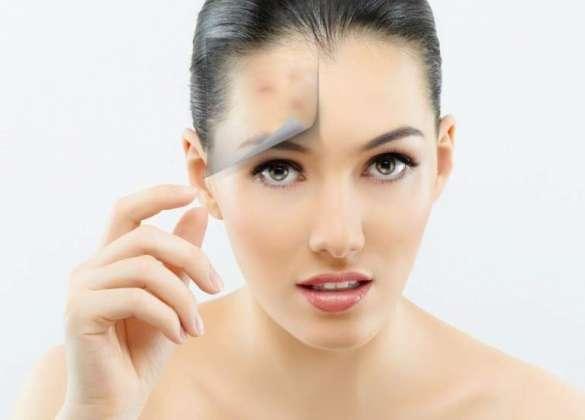 Acne Skin Ka Makeup Ahtiat Zaroori Hai